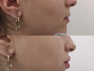 Aumento labios-698253