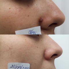 Antes y después Eliminación queratosis seborreica con Plexr - Clínica Bedoya