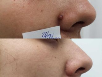 Dermatología-698257