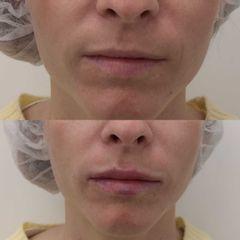 Antes y después Relleno de labios con ácido hialurónico - Clínica Bedoya
