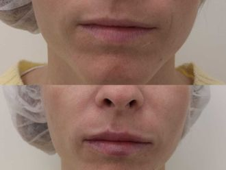 Aumento labios-701573