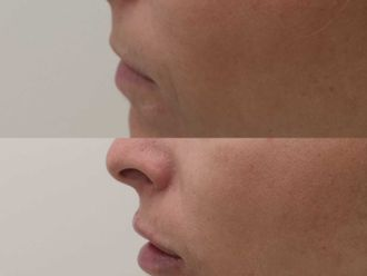 Aumento labios-701574