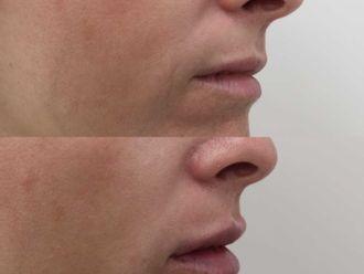 Aumento labios-701576