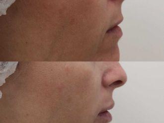 Aumento labios-701577