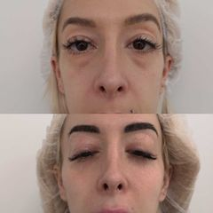 Antes y después  Eliminación de ojeras - Clínica BedoyaClínica Bedoya