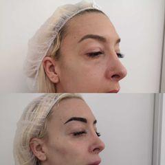 Antes y después  Eliminación de ojeras - Clínica Bedoya