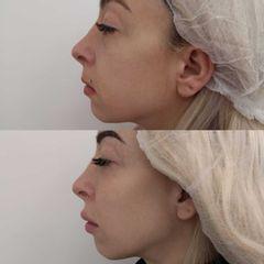 Antes y después Aumento de pómulos - Clínica Bedoya