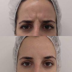 Antes y después Tratamiento arrugas entrecejo con botox - Clínica Bedoya