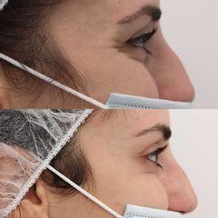 Antes y después Tratamiento arrugas patas de gallo con botox - Clínica Bedoya