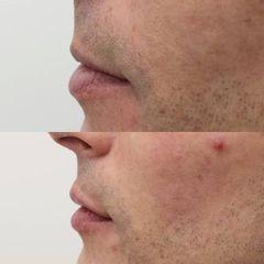Antes y después Aumento de labios - Clínica Bedoya