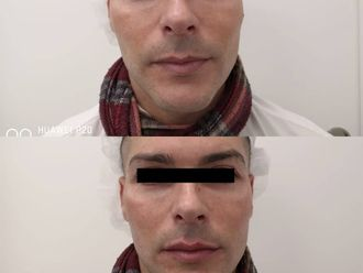 Aumento labios-739585