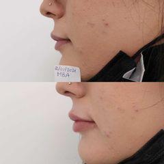 Relleno de labios con ácido hialurónico - Clínica Bedoya