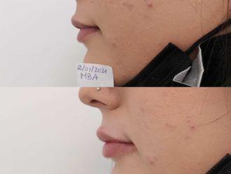 Aumento labios-740642