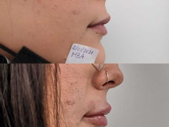 Aumento labios-740643