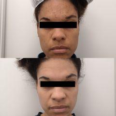 Tratamiento anti manchas - Clínica Bedoya