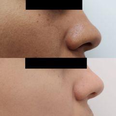 Tratamiento anti manchas antes y después