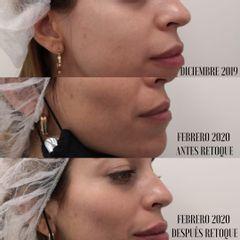 Relleno pómulos con ácido hialurónico - Clínica Bedoya