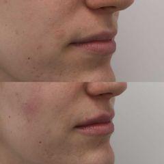 Relleno de labios sútil con ácido hialurónico - Clínica Bedoya