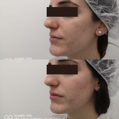Relleno de pómulos y labios con ácido hialurónico - Clínica Bedoya