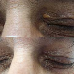 Eliminación de xantelasma - Clínica Bedoya