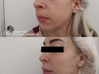 Rellenos faciales-786031