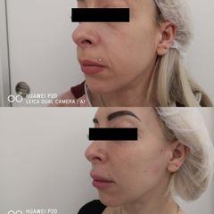 Paciente que inicia tratamiento en óvalo facial - Clínica Bedoya