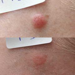 Eliminación lesión cutánea - Clínica Bedoya