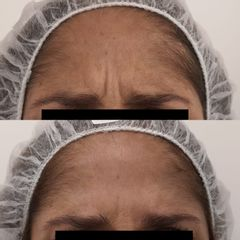 Botox entrecejo- Clínica Bedoya