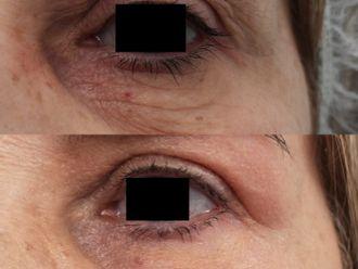 Blefaroplastia sin cirugía - 790833
