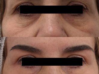 Blefaroplastia sin cirugía - 790834