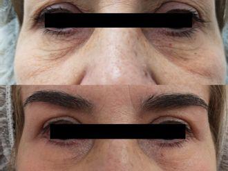 Blefaroplastia sin cirugía - 790835
