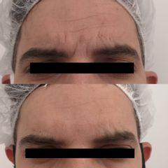 Botox - Clinica Bedoya