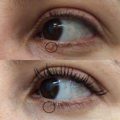 Eliminación de verruga- Clínica Bedoya