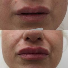Aumento de labios - Clínica Bedoya
