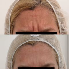 Botox- Clínica Bedoya