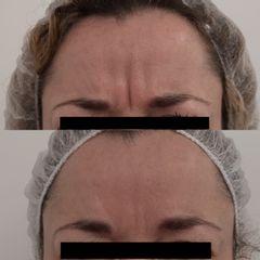 Botox entecejo- Clínica Bedoya