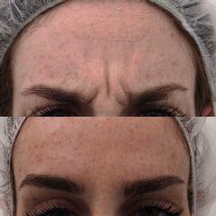 Tratamiento botox - Clínica Bedoya