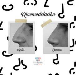 Antes y después Rinomodelación en Clínica Rubianes (Antes y después)