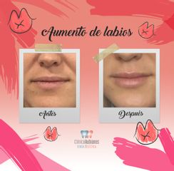 Antes y después Aumento de labios en Clínica Rubianes (Antes y después)