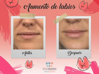 Aumento labios-645496