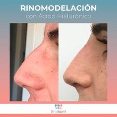 Antes y después Rinomodelación - Clínica Rubianes