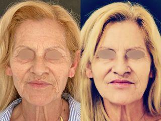 Antes y después Full Face - Clínica Rubianes