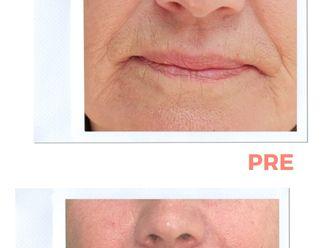 Aumento labios - 794211