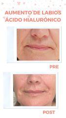 Aumento de labios con ácido hialurónico - Clínica Rubianes