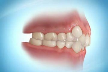 Clinicas Dentales Avantdent