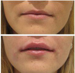 Aumento de labios - Clínica Nutriestética