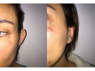 Corrección cicatrices - 608508