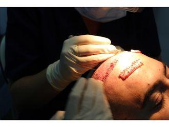 Cirugía capilar - 608525