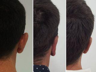 Antes y después Otoplastia o cirugía de las orejas