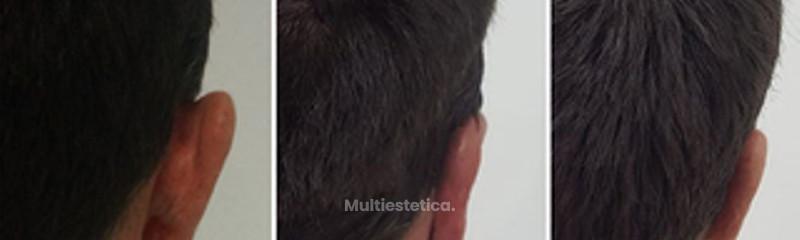 Otoplastia o cirugía de las orejas